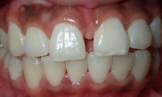 Bonding-Gap-Closure-Before-Image